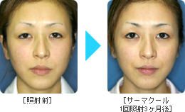�T�[�}�N�[��Before �� After Face1