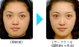 �T�[�}�N�[��Before �� After Face2