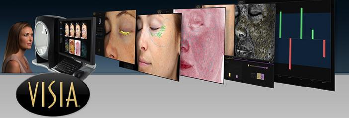 「VISIA画像診断」の画像検索結果